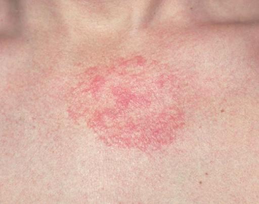 eczema-512x405.png